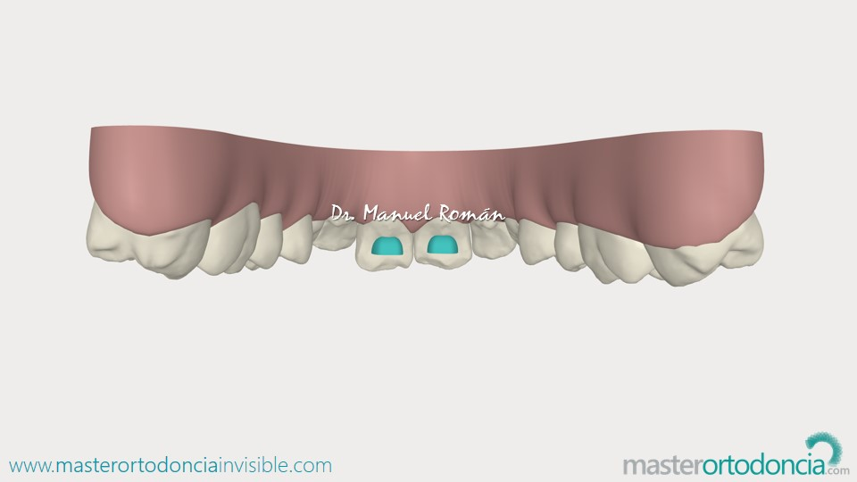 Bite Ramps Invisalign
