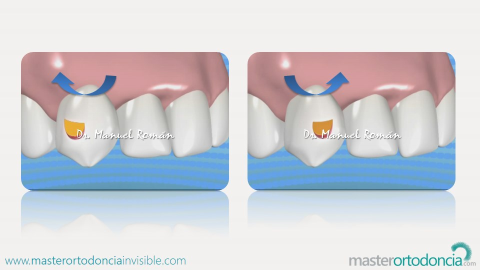 Mster Ortodoncia Invisible Dr Manuel Romanmaster Ortodoncia
